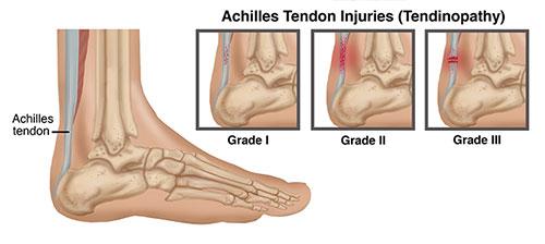 Achilles tendon injury (Tendinopathy)
